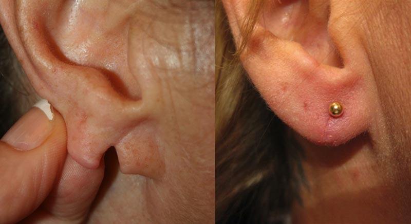 ricostruzione lobi orecchio